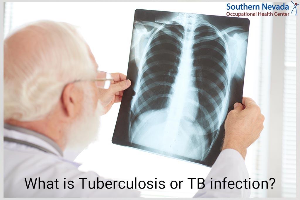TB Skin Test In Las Vegas